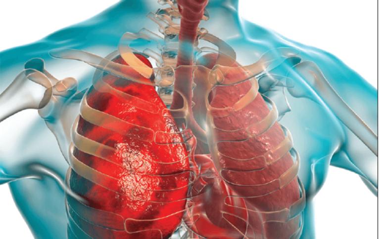 दुनिया भर में टीबी का खतरा बढ़ रहा है