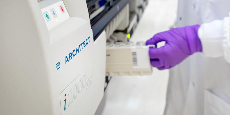जानिए रैपिड एंटीबॉडी टेस्ट के बारे में