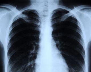 पिछले साल के लिए विश्व स्वास्थ्य संगठन ने भारत मे 26.9 लाख लोगो के टीबी से होने का अनुमान लगाया था।